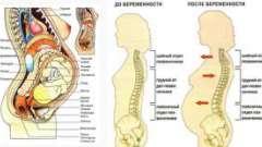 Болить спина при вагітності