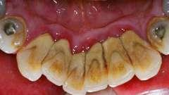 Методи видалення зубного каменю в домашніх умовах