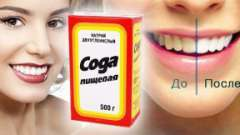 Чи можна чистити і вибілювати зуби содою: переваги і недоліки